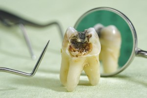 Missing teeth can lead to tooth decay and periodontal disease.